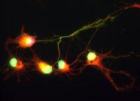 Neurones mis en culture pendant 4 jours sur une surface homogène cytophile