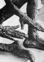 Mains et pieds d'un varioleux