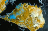 Macrophage phagocytant le bacille du BCG