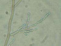 Cladophialophora bantiana