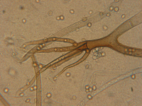 Rhizopus oryzae