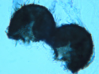 Microascus trigonosporus