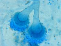 Tête aspergillaire bicéphale d'Aspergillus fumigatus