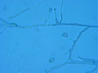 Acremonium recifei