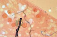 Tube digestif d'Anopheles gambiae parasité par Plasmodium falciparum