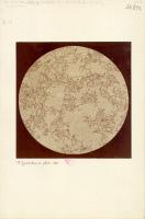 Microphotographie montrant des microbes observés par Pasteur
