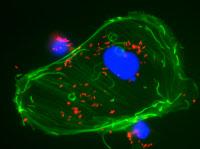 Observation en microscopie à fluorescence d'une cellules infectée par Listeria.
