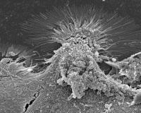 Bactéries Escherichia coli O104:H4 en interaction avec des cellules de l'épithélium intestinal humain