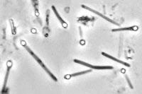 Bactéries Clostridium tetani