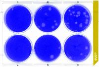 Plages de lyse du virus Zika sur cellules Vero.
