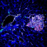 Tissu infecté par Listeria monocytogenes (la bactérie apparaît en rouge)