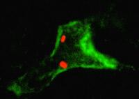 Macrophage hépatique (en vert) phagocytant les bactéries pathogènes Listeria monocytogenes (en rouge)