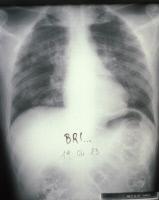 Pneumonie à Pneumocystis jirovecii chez un malade du sida en 1983