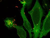 Shigella flexneri infectant des cellules Hela
