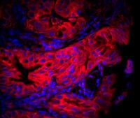 Tissu gastrique infecté par Helicobacter pylori
