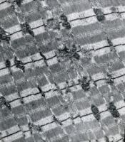 Cellules musculaires de souris vues en microscopie électronique.