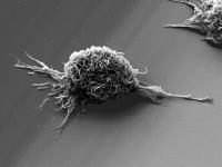Cellule dendritique vue en microscopie électronique à balayage