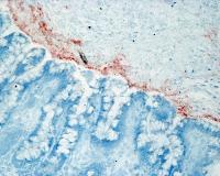 Coupe histologique de tissu intestinal humain immuno-marqué pour la bêta-défensine-3