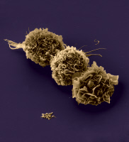 Cellules dendritiques