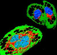 Cellule infectée par Zika