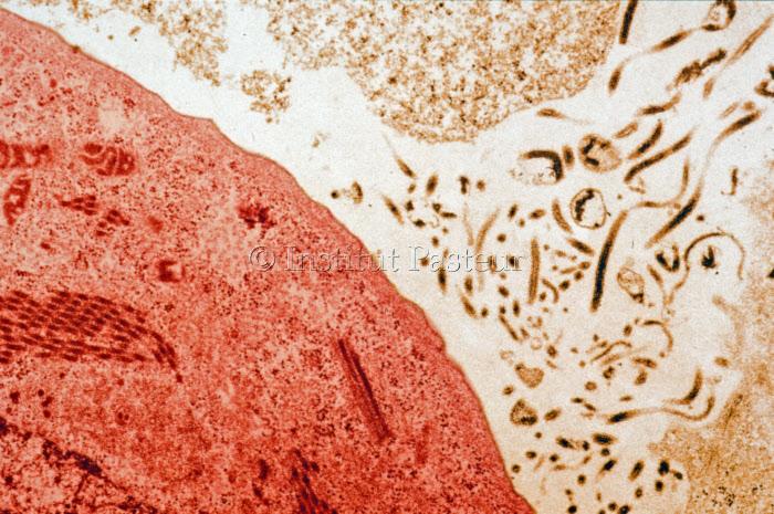 Cellules infectées par le virus Ebola