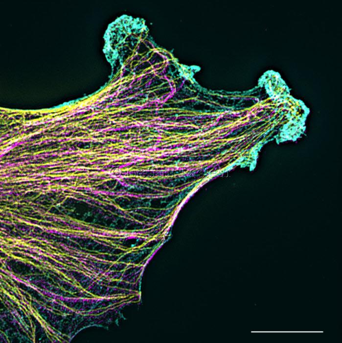 Cytosquelette d'un gliome en migration.