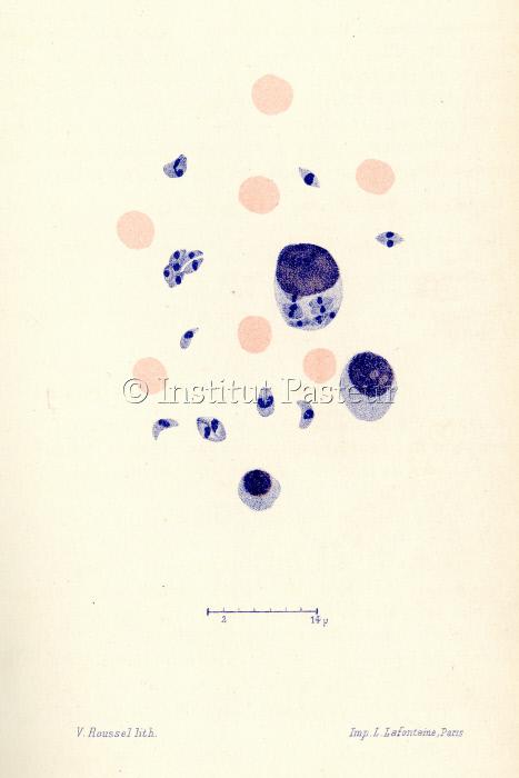 Planche Toxoplasma gondii
