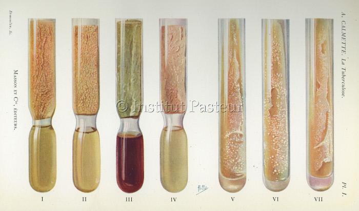 Culture de tuberculose dans des tubes à essais